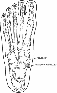Foot image indicating location of navicular and accessory navicular