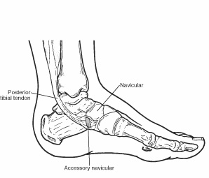 Foot diagram indicating location of posterior tibial tendon, accessory navicular, and navicular