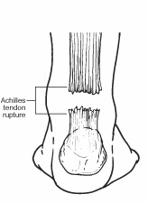 Diagram of the back of the leg indicating site of Achilles tendon rupture
