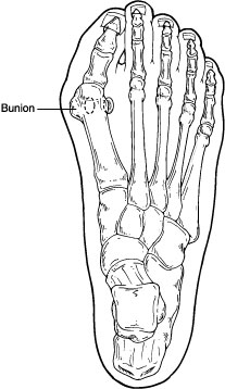 Diagram indicating location of bunion on a foot