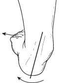 Adult Acquired Flatfoot Deformity