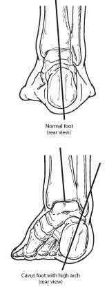 Normal foot and Cavus foot