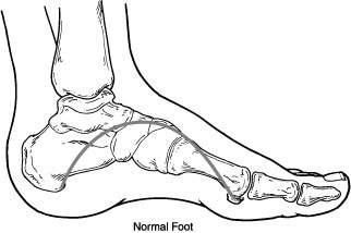 Normal foot with arch