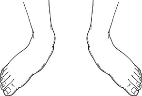 Pediatric flatfoot deformity as seen from the front.
