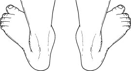 Pediatric flatfoot deformity as seen from the back.