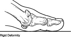 Rigid deformity of the big toe caused by Hallux Rigidus