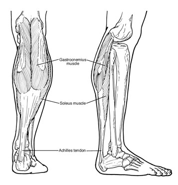 Equinus is often due to tight Achilles tendon or calf muscles