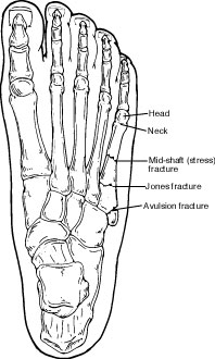 Fifth metatarsal fracture locations