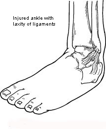 Injured ankle with laxity of ligaments