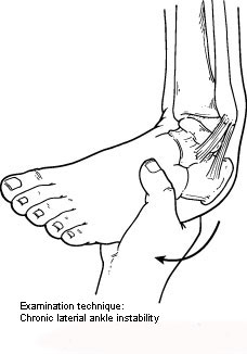 Examination technique for chronic ankle instability