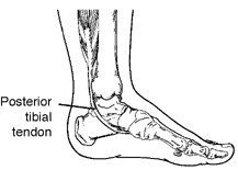 Posterior tibial tendon dysfunction (PTTD)