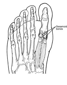 Sesamoid in the foot