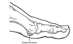 Sesamoid bone in foot