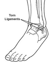 Diagram of torn ligaments in a sprained ankle
