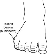 Location of Tailor's Bunion