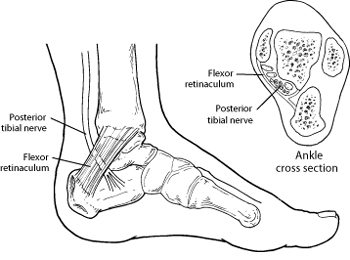 tarsal tunnel syndrome foot health facts Sacral Nerves Diagram diagram of the tarsal tunnel