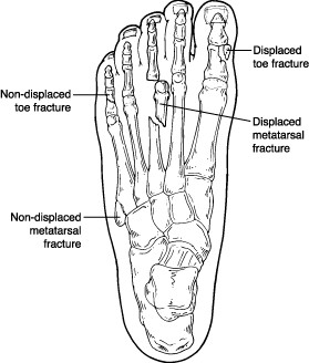 Locations of displaced and nondisplaced toe fractures