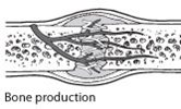 Diagram of bone production