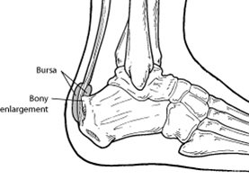 Haglund's deformity is a bony enlargement on the back of the heel