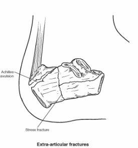 Extra-articular calcaneal fracture