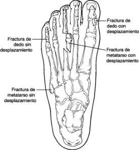 Fracturas de los dedos del pie y de los huesos for Cuarto y quinto metatarsiano