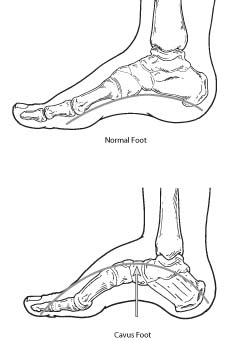 Normal foot and Cavus foot